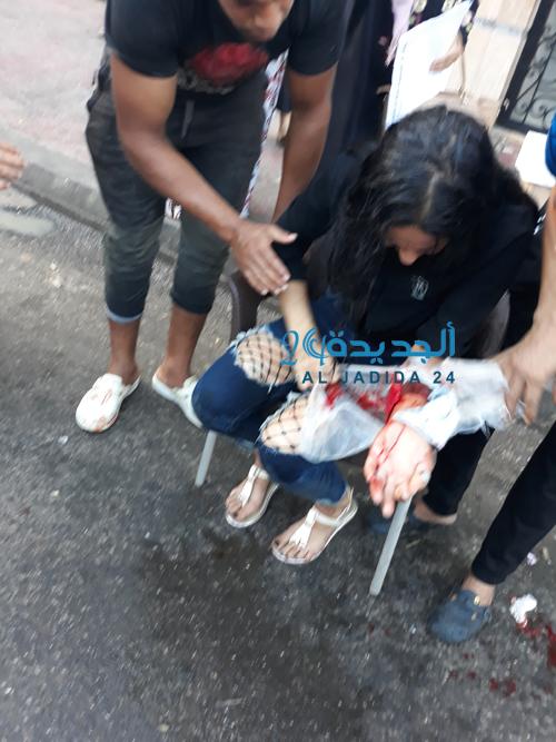 بالفيديو والصور فتاة تحاول الانتحار بقطع الشرايين وسط شارع محمد الرافعي بسبب خلاف مع زميلتها في العمل